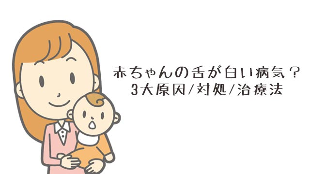 赤ちゃんの舌が白いのは病気!?3大原因とその対処/治療法