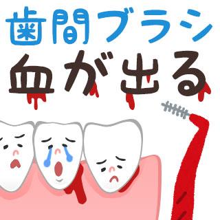 歯間ブラシで血が出る2大原因と正しい使い方/選び方