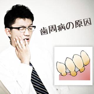 歯周病の原因細菌と発症リスクを高める病気/生活習慣