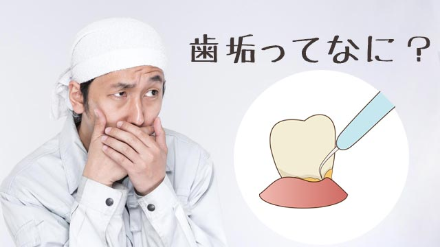 歯垢(プラーク)とは?臭い/細菌数/形成にかかる期間など