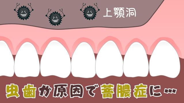 蓄膿症は虫歯が原因となるケースも!早期発見が治療の近道