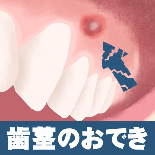 フィステルの放置は口臭にも!歯茎のおできの原因と治療法