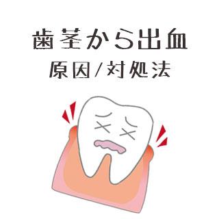 歯茎からの出血が止まらない・痛いのは病気?原因と対処法