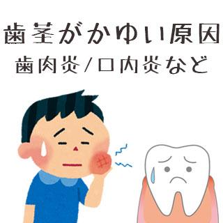 歯茎がかゆい原因と対処法 – 歯肉炎/口内炎と限らない!?