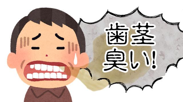 歯茎が臭い | 歯と歯茎の間から臭い汁が出る6つの原因