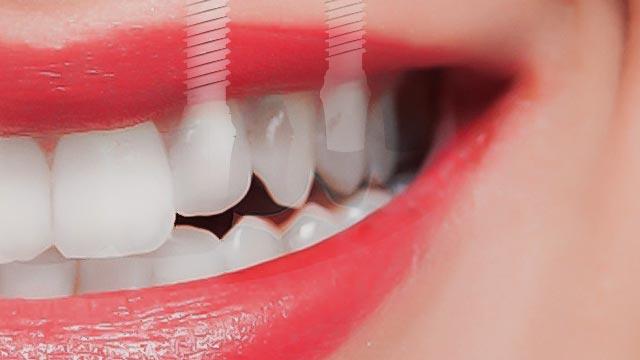 埋入されるインプラントと女性の歯