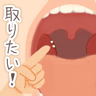 臭い玉が取れない…見えてるのに除去できない膿栓の対処法