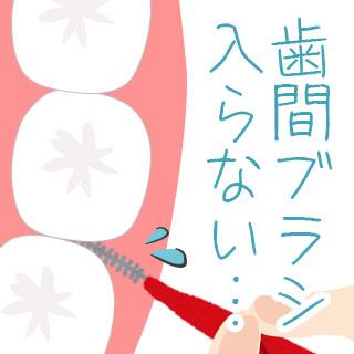 歯間ブラシが入らない原因/歯を傷つけないサイズの選び方