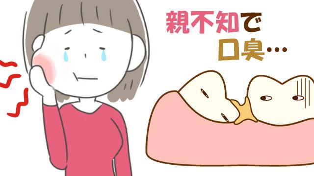 親知らずによる口臭の原因と対策!抜歯後も口が臭くなる?