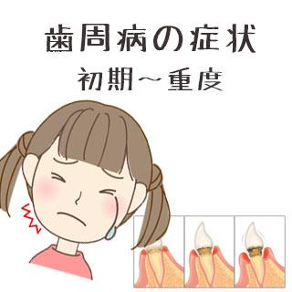 【歯周病症状】当てはまったら注意!初期~重度 進行段階別