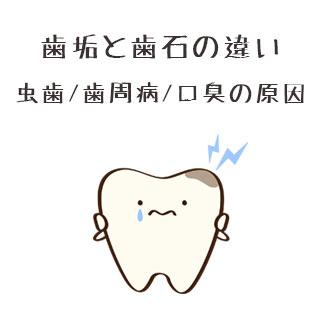 歯垢と歯石の違い/放置は虫歯や歯周病・口臭につながる!