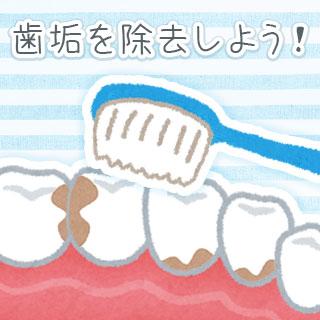 歯垢除去を徹底的に行うコツ6/歯医者クリーニングの効果