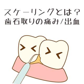 スケーリングは痛い?歯石を取る目的/治療にかかる費用