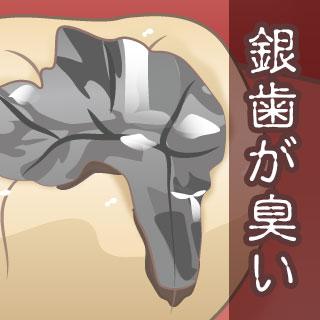 銀歯が臭い原因と対策方法!臭い汁が出る/出血は大丈夫?