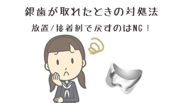 銀歯が取れたときの対処法!放置/接着剤で戻すのはNG!
