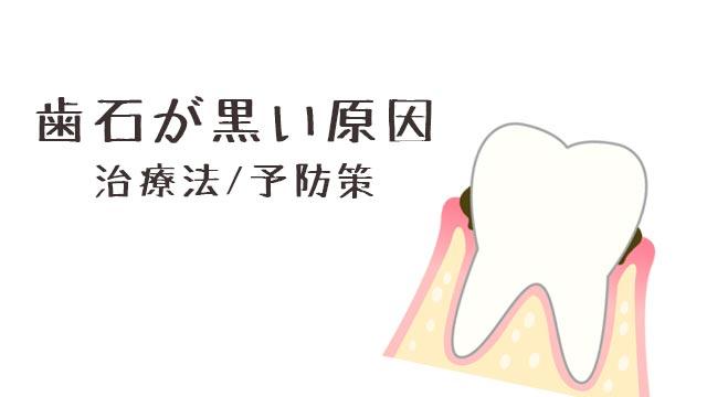 歯石が黒い原因と治療方法/重度だと手術が必要な場合も!