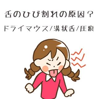 舌のひび割れは病気が原因?ドライマウス/溝状舌/圧痕