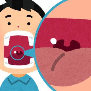 膿栓治療の内容と病院で行う除去方法/費用【臭い玉】