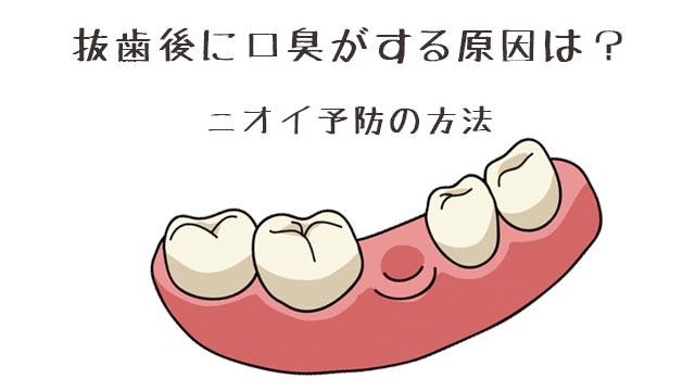 抜歯後に口臭が強くなる原因とは?ニオイを予防する方法