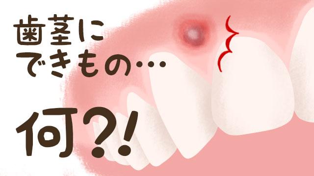 歯茎のできものの原因は口内炎?歯肉癌?おできの原因8つ